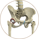 Revision Joint Replacement